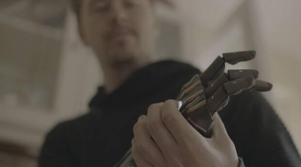 Daniel Melville, el jugador con un brazo biónico basado en Deus Ex Imagen 3