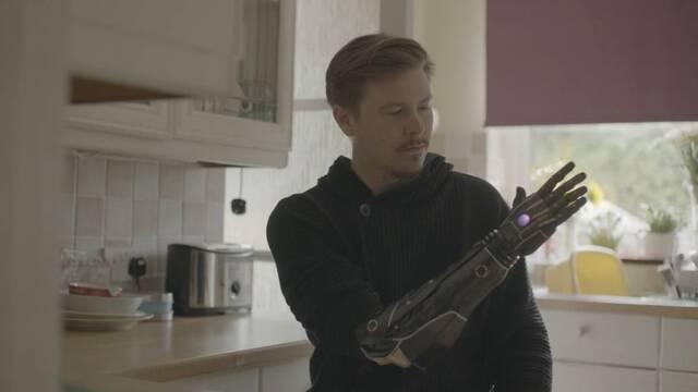 Daniel Melville, el jugador con un brazo biónico basado en Deus Ex